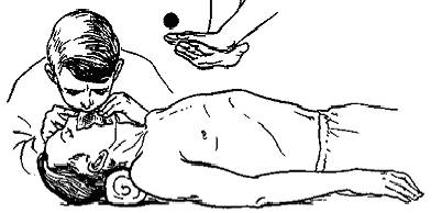 Искусственное дыхание реферат ru Искусственная вентиляция легких и непрямой массаж сердца вдох