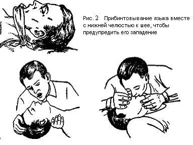 Техника непрямого массажа сердца реферат 4808