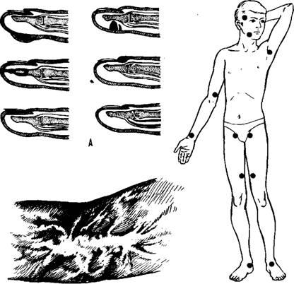 Травматизм и его профилактика реферат ru Другие рефераты